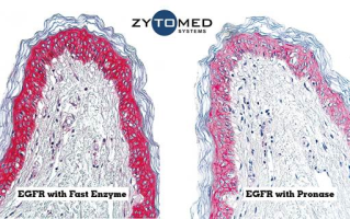 Fast Enzyme Fast Enzyme for IHC on FFPE tissue Fast, efficient, and gentle tissue pre-treatment